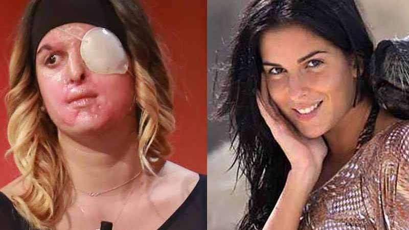 La modelo italiana a la que el novio atacó con ácido mostró cómo quedó su rostro