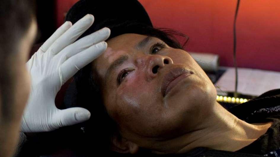 Mujeres Bolivianas Con Vitíligo Recurren Al Tatuaje Para Disimular