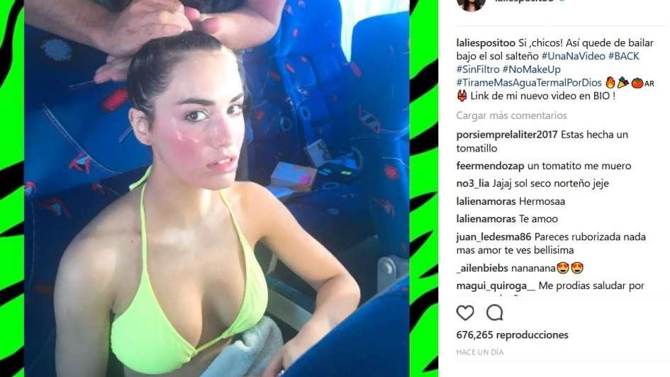 La foto de Lali Espósito que alertó a sus fans