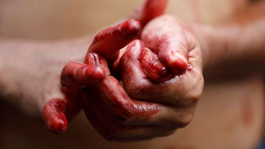 Resultado de imagen de manos con sangre