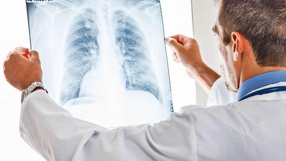 Noviembre: mes de concientización del cáncer de pulmón