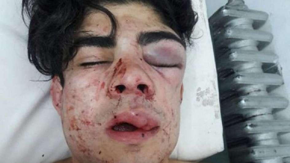 A un joven mendocino lo desfiguraron entre varios