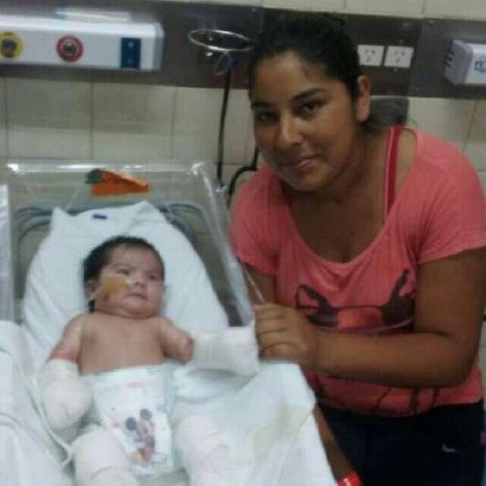 """Tupungato solidario: juntan dinero para ayudar a Abigail, una beba con """"piel de cristal"""""""