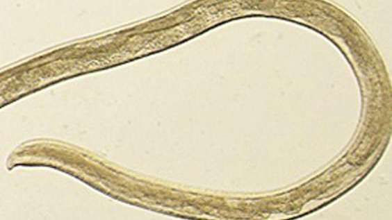 Le sacaron 14 gusanos de un ojo que se alimentaban de lágrimas