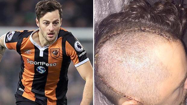 Se fracturó el cráneo en un partido ante el Chelsea y con 26 años abandonó el fútbol