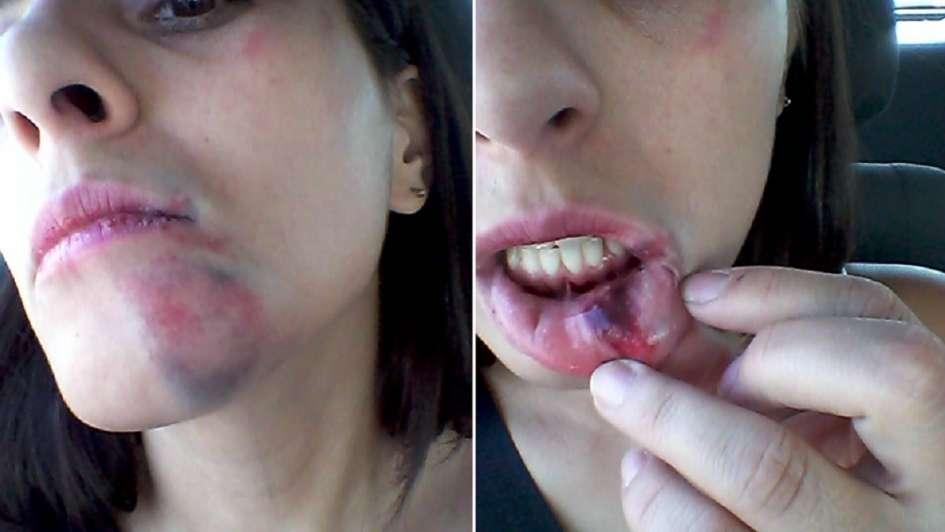 Una joven denunció que recibió una feroz golpiza por negarse a un beso en Guaymallén