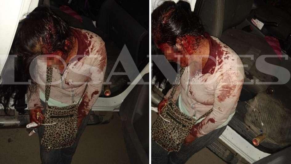 Casi mata a su mujer a golpes con un desodorante en Guaymallén