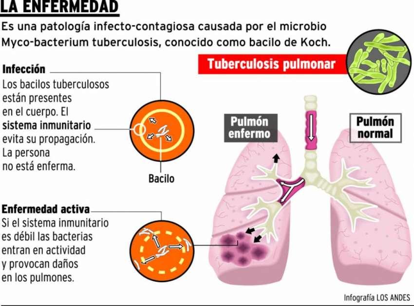 Casos de tuberculosis aumentaron 6% en los últimos dos años