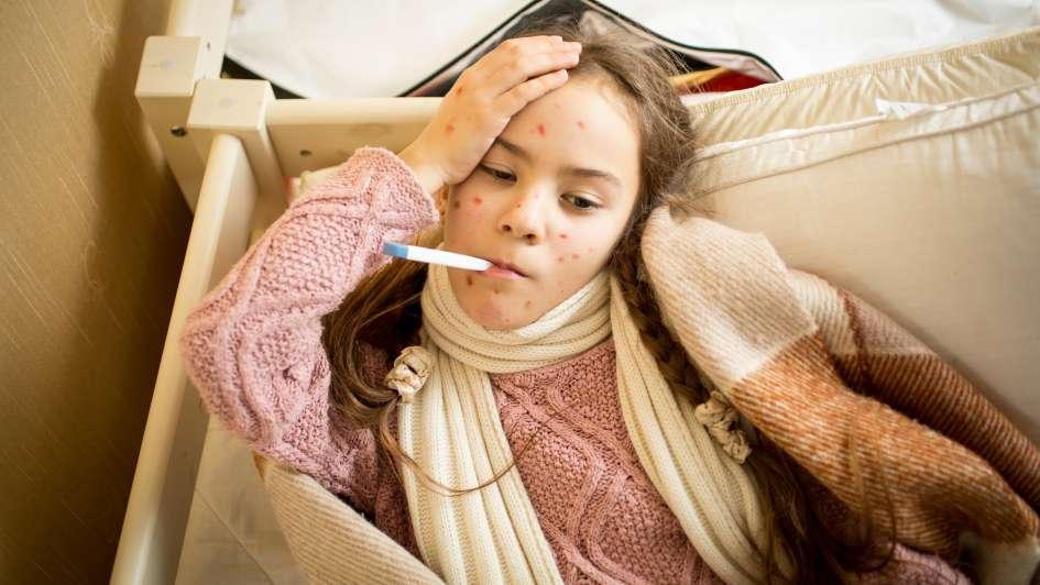 Recomendaciones ante la potencial circulación del virus del sarampión