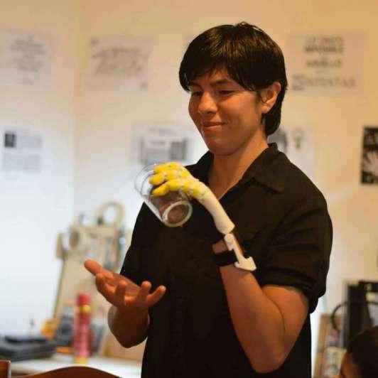 Joaquín cumplió su promesa: realizó el sueño de Gloria y le fabricó una prótesis en 3D