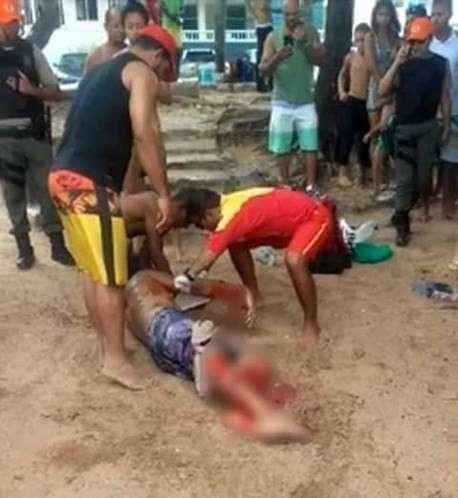 Un hombre perdió una pierna tras ser atacado por un tiburón en una playa de Brasil