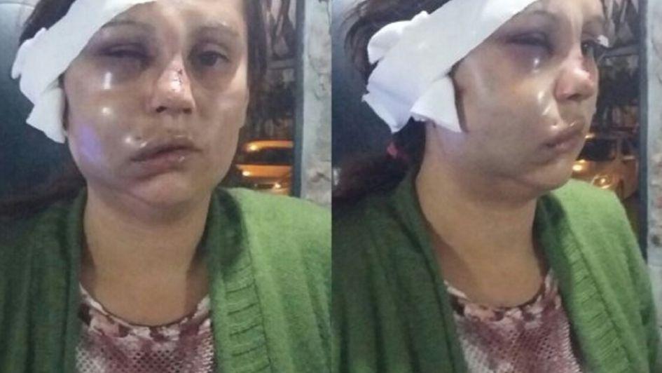 Llegó borracho a su casa y le desfiguró la cara a su mujer que tenía a su bebé en brazos