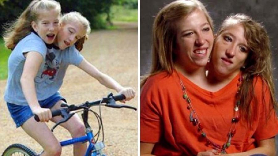 El increíble caso de Abby y Brittany, las siamesas que comparten el 80% de su cuerpo