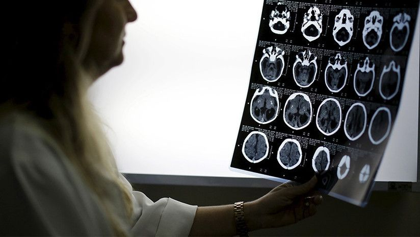 Una mujer pierde líquido cerebral desde hace años por un diagnóstico erróneo