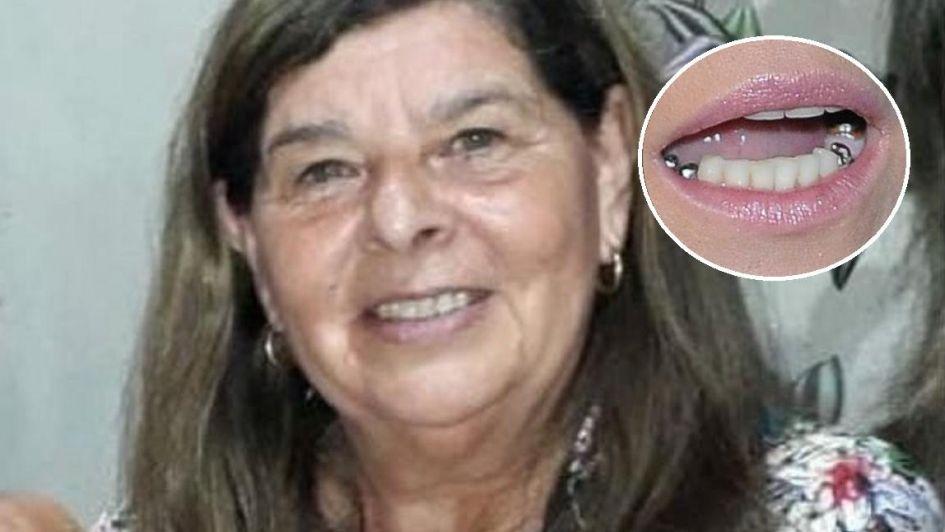Golpeó brutalmente a su tía mientras tomaba mate para sacarle un diente de oro