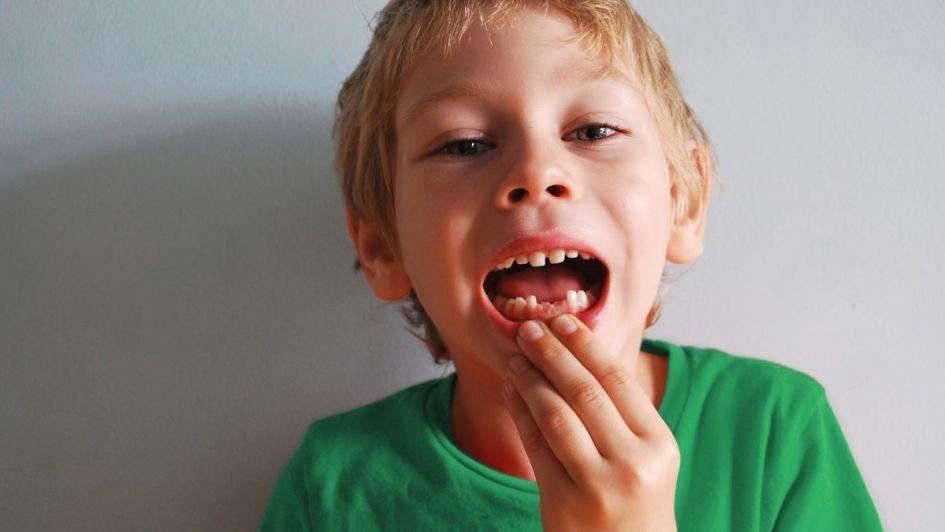 A mi hijo le salieron manchas en los dientes, ¿qué hago?
