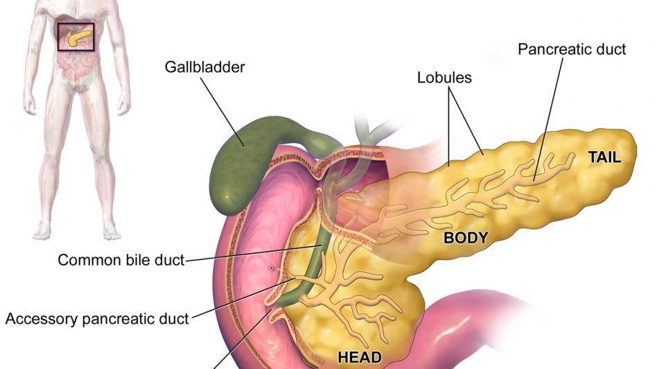 ¿Qué problemas puede traer tener un quiste en el páncreas?