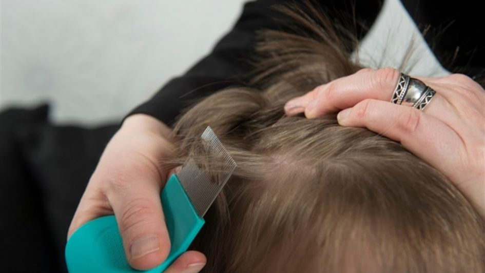 Con las clases, volvió la época de piojos en los niños: ¿Cómo combatir la pediculosis?