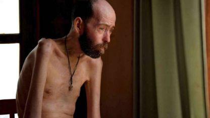 El entrerriano Fabián Tomasi sufre una polineuropatía tóxica severa por contacto con herbicidas.