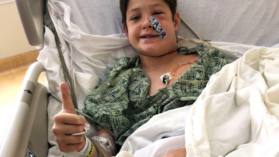 Impresionante: un niño cayó de un árbol, un hierro le atravesó el cráneo y sobrevivió