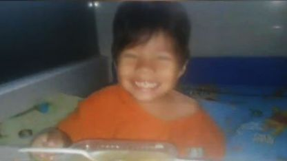 Sebastián, el niño al que le extirparon un riñón sano.