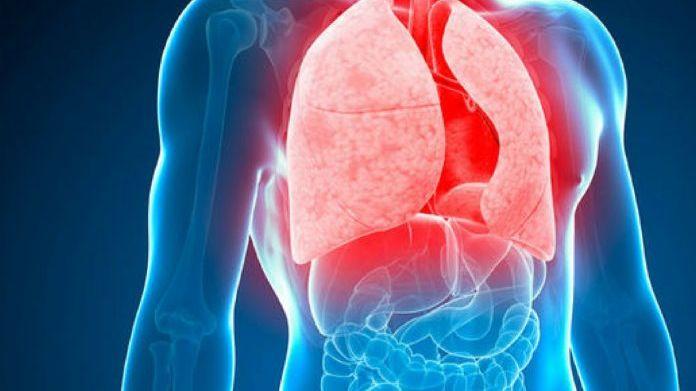 La OMS pide acciones urgentes para acabar con la tuberculosis
