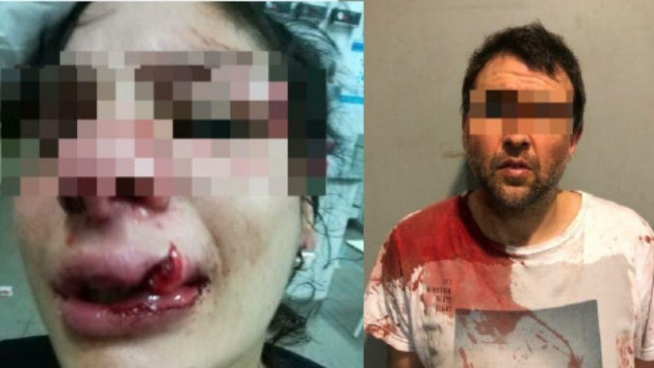 Desfiguró su novia con un casco de moto a la vista de todos y lo detuvieron