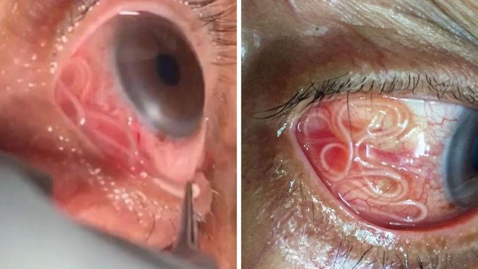 Extraen del ojo de un hombre un gusano vivo de 15 cm