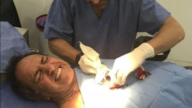Daniel Scioli fue operado de urgencia por una insólita lesión mientras jugaba al futsal