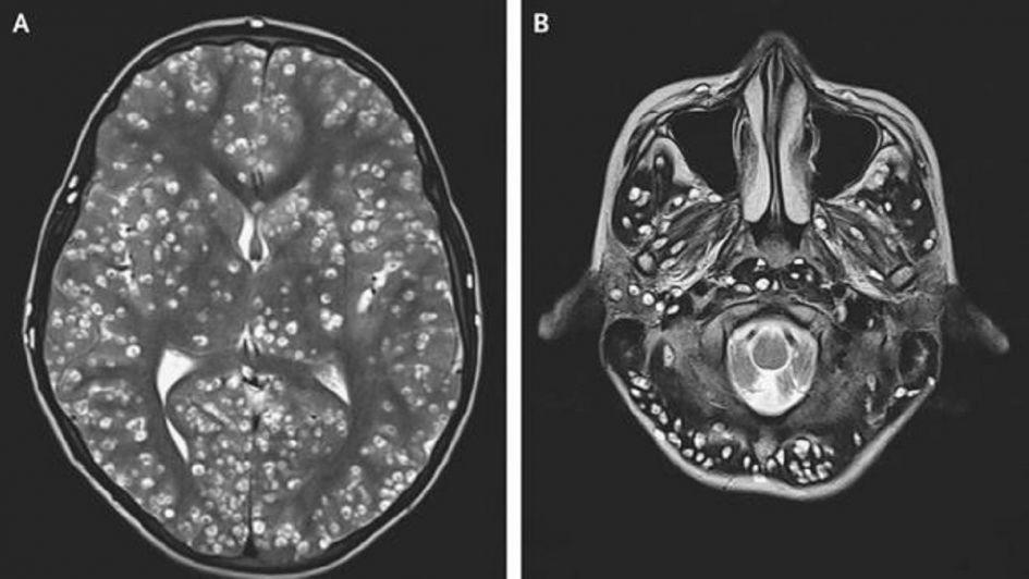 Le dolía la cabeza, fue al hospital y le descubrieron una plaga de larvas en el cerebro