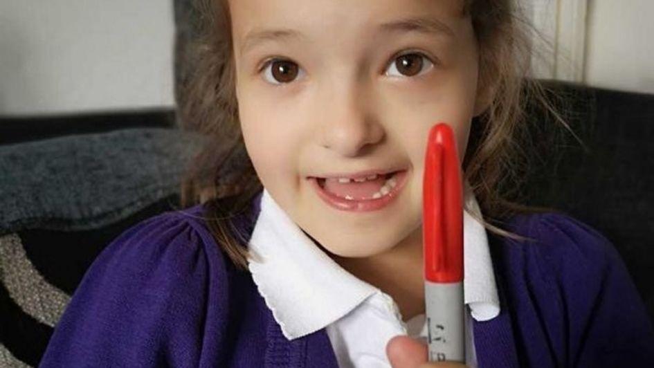 Se dibujó puntos rojos para fingir varicela y no ir a la escuela, pero el plan terminó mal