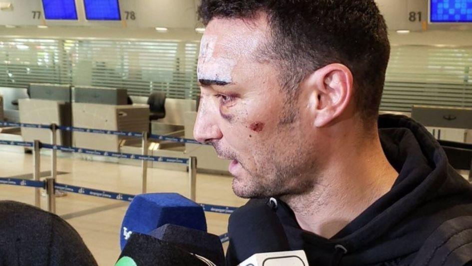 Del accidente en Mallorca a la reunión con Menotti — Volvió Scaloni