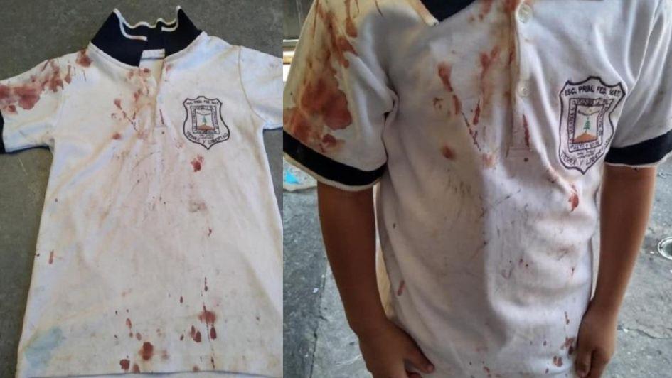 Una madre compartió la chomba ensangrentada de su hijo — Bullying