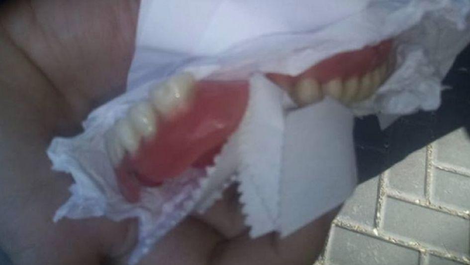 Inusual pedido en Facebook: encontró una dentadura postiza en el Centro y busca al dueño