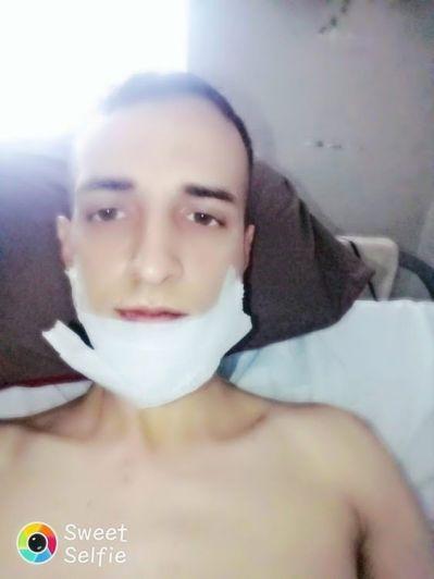 Por una paliza, un patovica le partió la mandíbula en seis