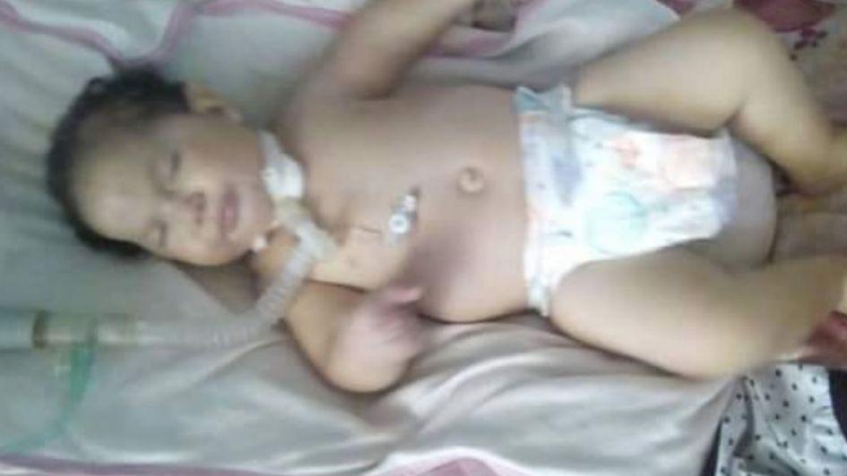 La dramática situación de una beba maipucina que pone en riesgo su salud