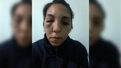 Víctima. Estaba a tres cuadras de su casa cuando fue atacada.